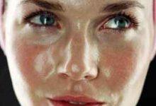 皮肤容易出油怎么调理-三思生活网