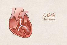 先天性心脏病的表现-三思生活网