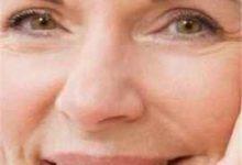 脸上皱纹怎么办-三思生活网