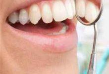 牙贴多久用一次比较好-三思生活网