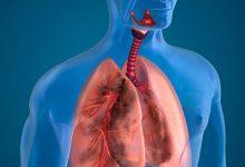 肺部有结节是怎么回事?要紧吗?-三思生活网