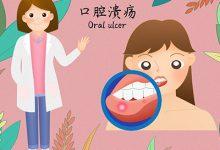 口腔溃疡怎么治好的最快 怎么治口腔溃疡最快-三思生活网