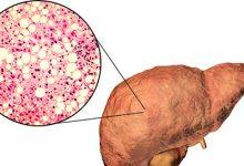脂肪肝怎么治疗最好的方法 怎么治疗脂肪肝比较好-三思生活网