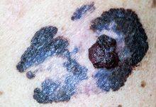 黑色素瘤早期症状图片 黑色素瘤早期有哪些表现-三思生活网