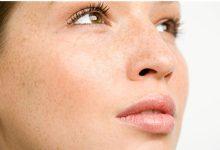 脸上皮肤有斑点是怎么回事 怎么去掉?-三思生活网