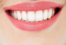 牙齿怎么美白最好的方法-三思生活网