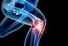 膝盖关节炎怎么治疗?膝盖关节炎怎么治疗-三思生活网