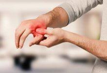 腱鞘炎怎么治疗最快最有效 肌腱炎最佳治疗方法-三思生活网