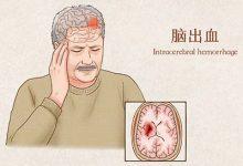 脑出血前有8个征兆 脑出血的早期症状-三思生活网