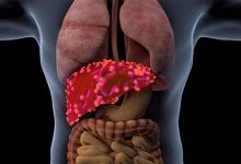 肝癌晚期能活多久一般 肝癌晚期的症状-三思生活网
