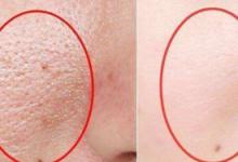 毛孔里挤出的白色细条是什么东西 白头粉刺可以用鸡蛋清去除吗-三思生活网