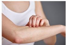 冬季皮肤为什么容易干痒 怎么改善这种问题-三思生活网