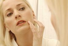 激素脸如何治疗及能自愈吗 恢复需要多久-三思生活网