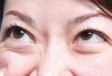 眼睛下面肿得像眼袋是怎么回事 教你消除的简单方法-三思生活网