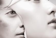 激光祛斑后可维持多久时间 为什么要注意防晒-三思生活网