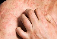 皮肤过敏症状图片 皮肤过敏症状有哪些表现-三思生活网