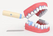 洗牙的好处和坏处 洗牙的利弊-三思生活网