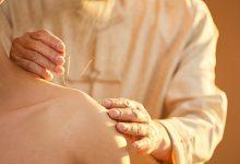 针灸的功效与作用 针灸有哪些好处-三思生活网